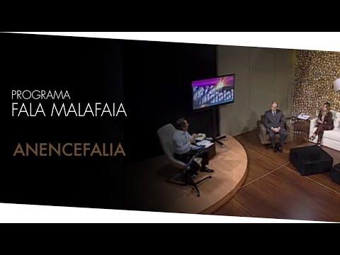 Fala Malafaia Anencefalia 06/04/12