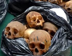Crânios humanos são achados em rua no centro do Rio de Janeiro