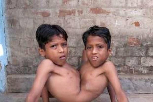 Gêmeos siameses são tidos como deuses na índia