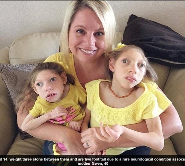 """Mãe revela como vivem suas 2 filhas que nasceram com microcefalia: """"Elas se comunicam com os olhos"""""""